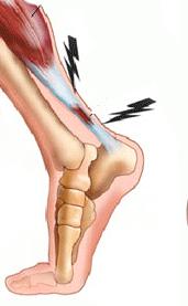 a bal láb ízületének duzzanata