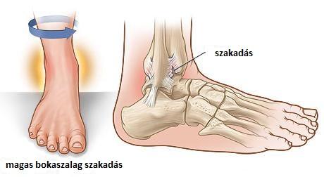 Bokaízületi artrózis - fájdalomportásebinko.hu