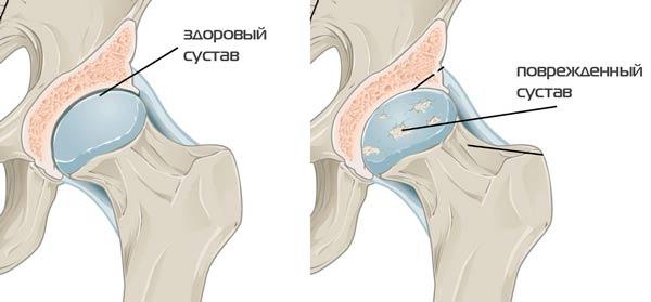 a csípőízületek deformáló artrózisa 2 3 fok)