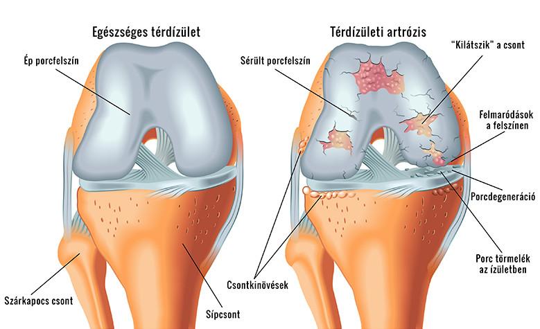 a jobb térd artrózisa