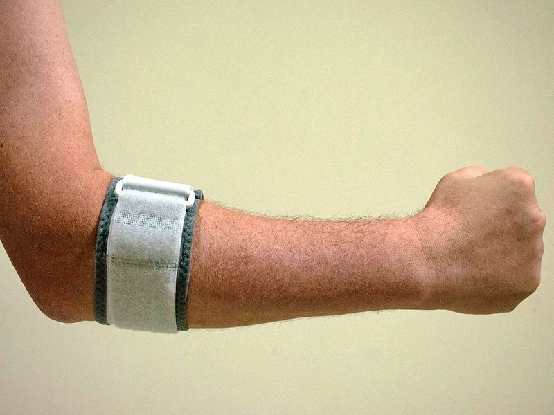 a kéz könyökízületei, a könyök kezének betegségei fájó fájdalom a csípőízületben nyugalomban