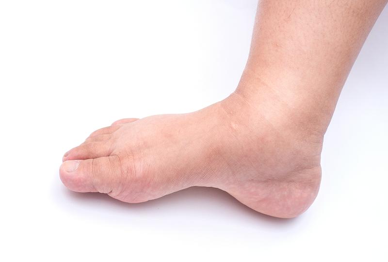 a láb duzzadt ízülete, mint a kezelése