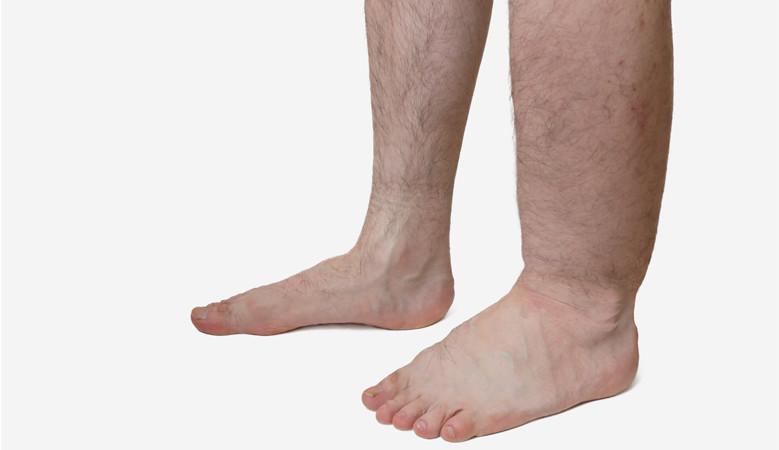 a láb duzzanata térd törés után)