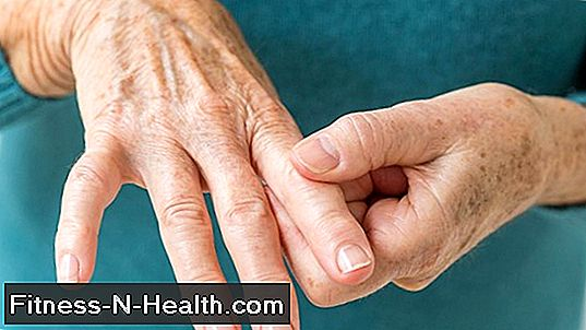 a nyaki osteochondrozis kenőcsök kezelése mert dagadt a lábad