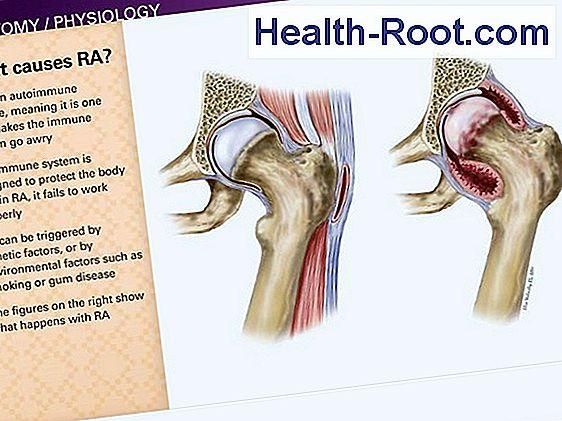 a láb osteoarthritis tünetei és kezelése ha a vállízület karja fáj