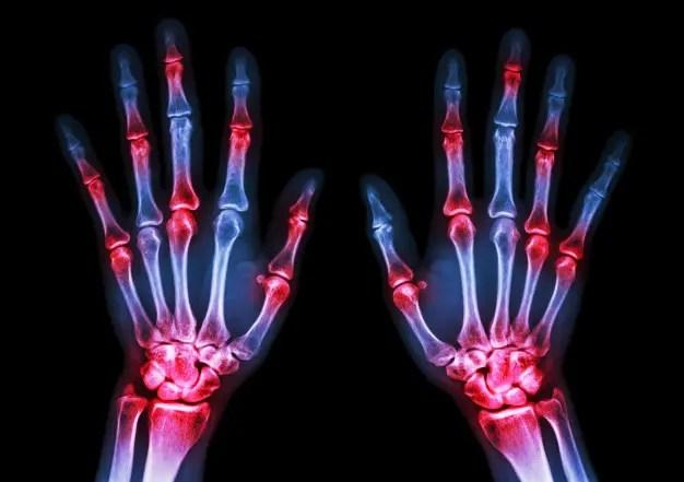 a nők rheumatoid arthritis tünetei
