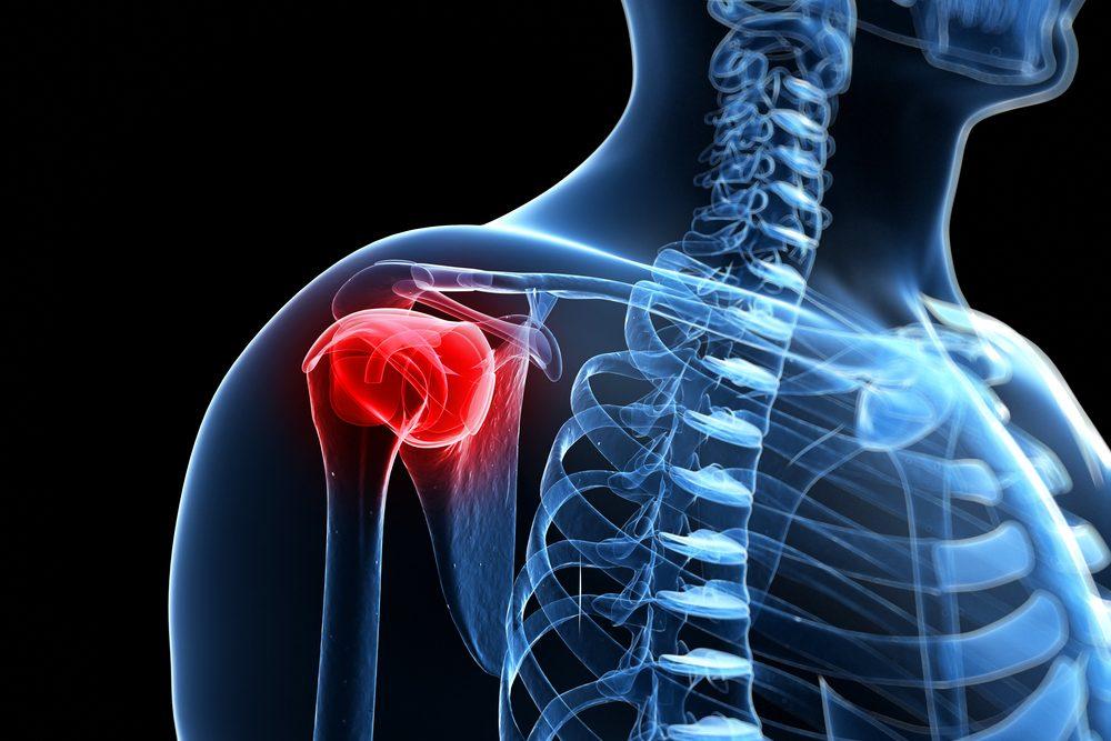 a nyaki vállízület fájdalma
