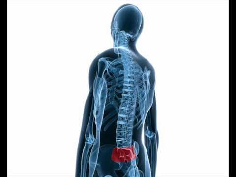 a sacroiliac ízület artrózisának kezelése