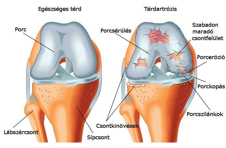 a sérült térd meniszkusz kezelése