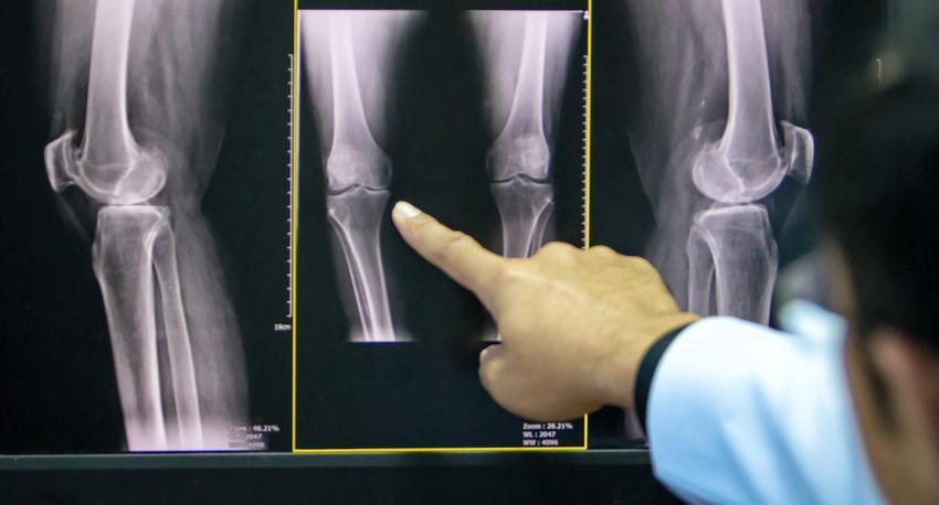 a térd artrózisa nincs folyadék a lábízület gyulladásának kezelése
