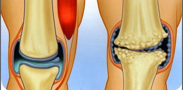 a térd porc károsodásának tünetei térdízület 30 éves korban