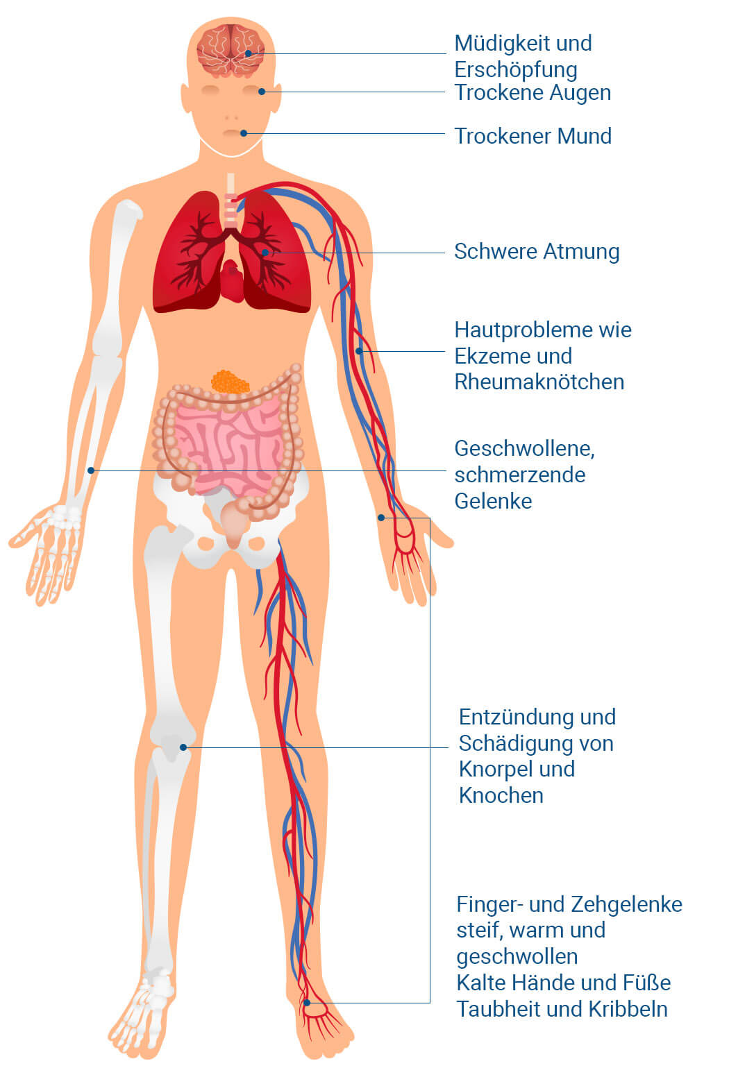 rheuma arthritis symptome)