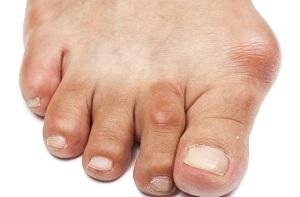 a hüvelykujj és a lábujj ízületei fájnak