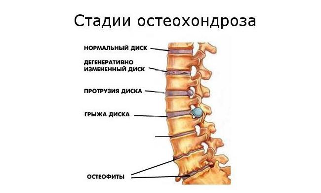 a csípőízület osteochondrozisának kezelésére szolgáló módszerek)