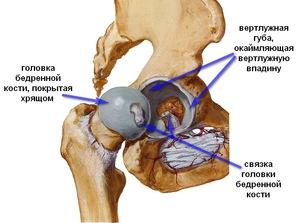 A csípőízület csont-artritisa - tünetek és komplex kezelés - Homorú-domború lencse July