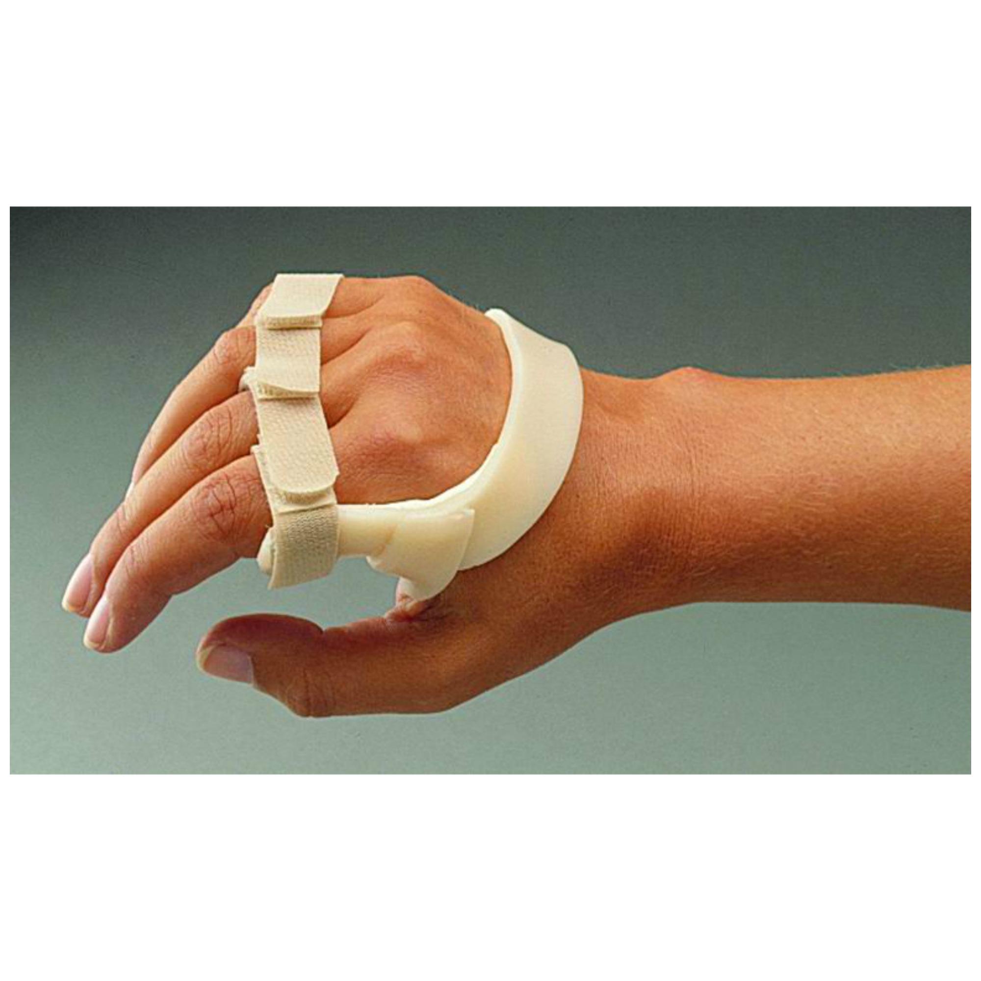 hogyan kezelik a reumatológusok az artrózist