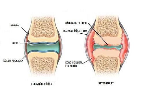 a térdízület oldalsó ízületeinek károsodása)