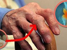 a láb ízületei összeroppannak és fájnak)