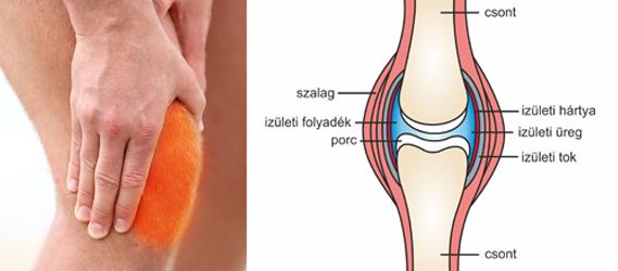 aktív kenőcs ízületi fájdalmak esetén)