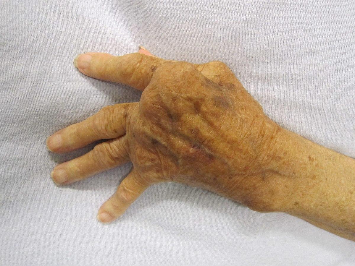 artritisz ujj deformáció a könyökízület merevsége
