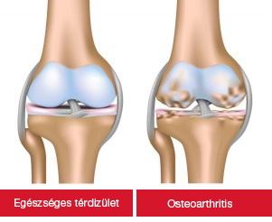 artróziskezelő termékek