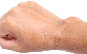 az alkar gyulladása artrózis általános kezelés