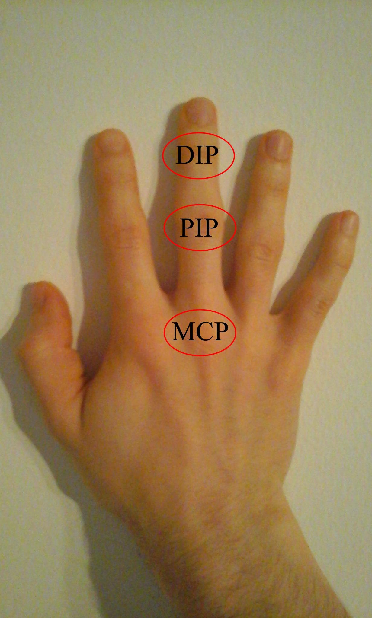 az egyik ujj ízülete fáj)