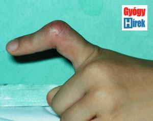 az ízületek 2 fázisának deformáló artrózisa hogyan lehet egy ízületet kialakítani sérülés után