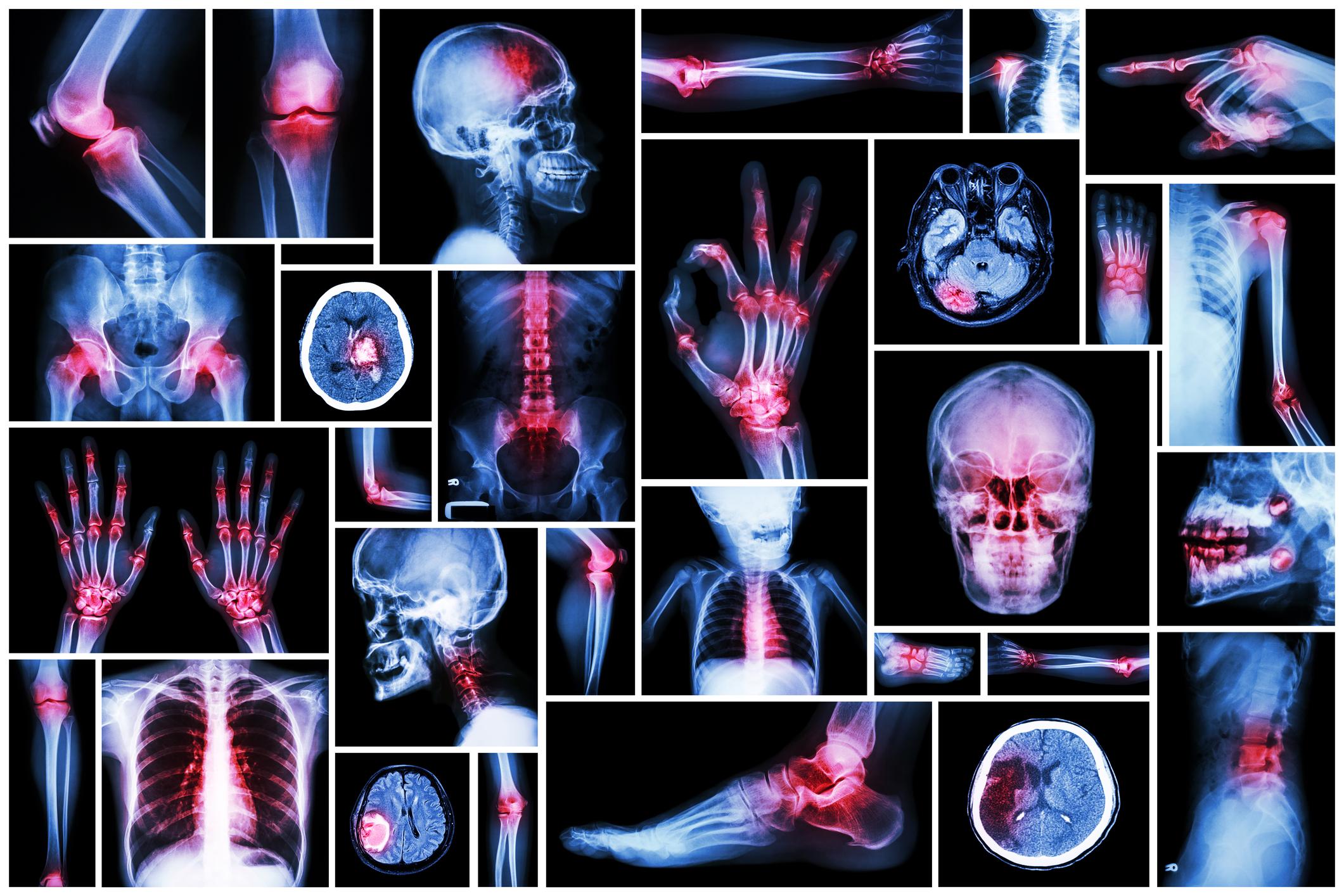 az ujjízület artrózisa