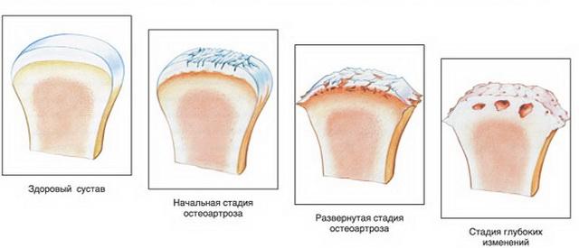 az ízületek 2 fázisának deformáló artrózisa)