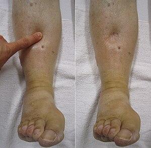 láb metatarsális gyulladása ha a térdízület fáj, hogyan kell kezelni