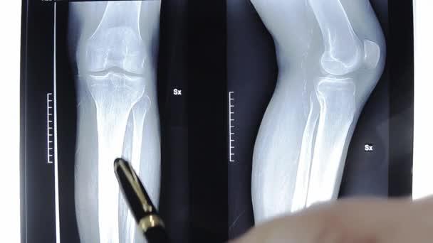 térd artrózisa 1. st)