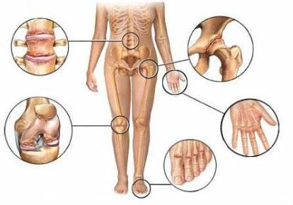 a jobb láb ízületeinek deformáló artrózisa)
