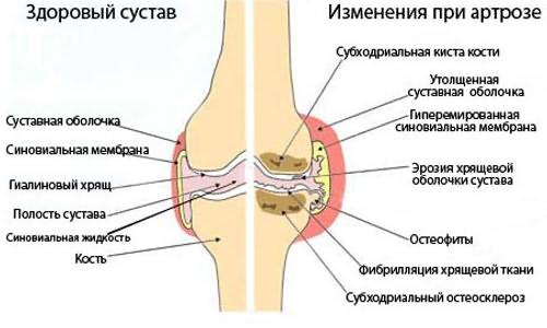 szimulátor a térd artrózisának kezelésére)