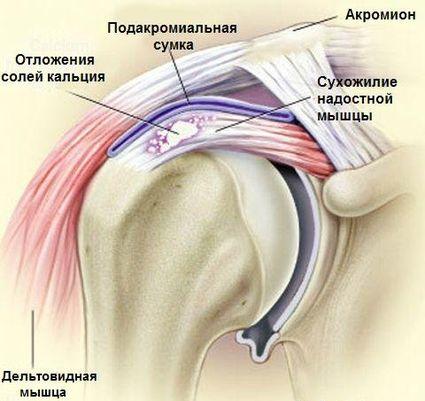 lehetséges melegedni a vállízület artrózisával)