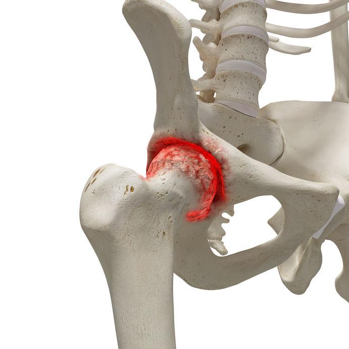 a csípő coxarthrosis tüneti kezelést okoz
