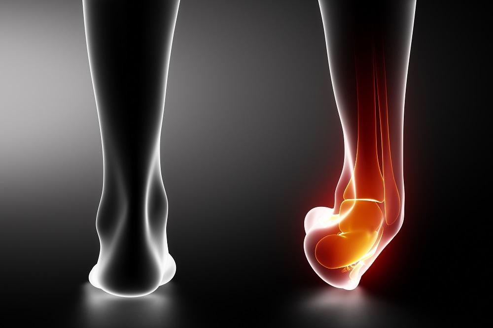 hogyan lehet enyhíteni a fájdalmat a bokaízület gyulladásával