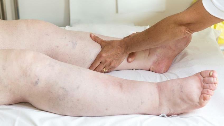 a boka mindkét lába fáj)