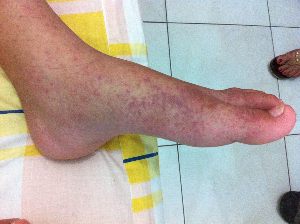 milyen betegségek a lábak ízületei)