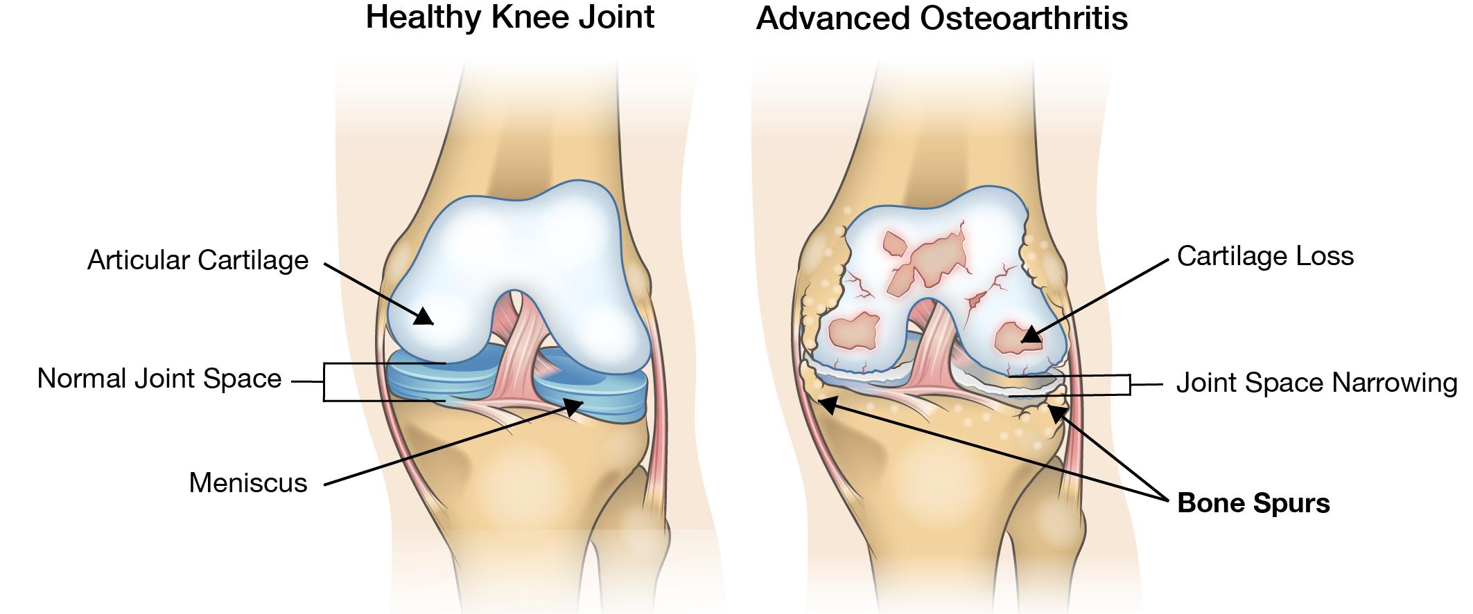 1 2 csípőízület osteoarthritis)