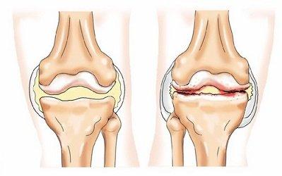 bilaterális térd gonartrosis az 1. fokozatú kezelés során