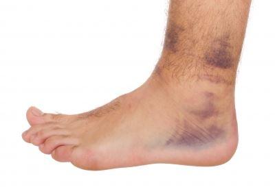 boka duzzanat sérülés után