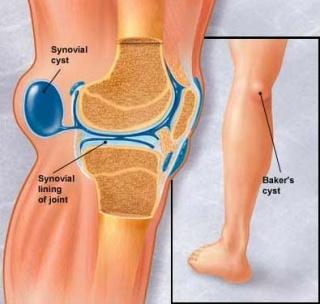 térdízületi fájdalom és kezelési okok