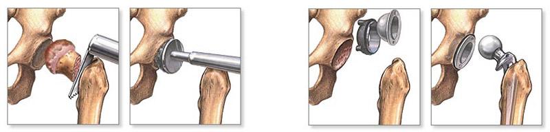 a bokaízület lábának artrózisa csípős paprika krém reuma ellen