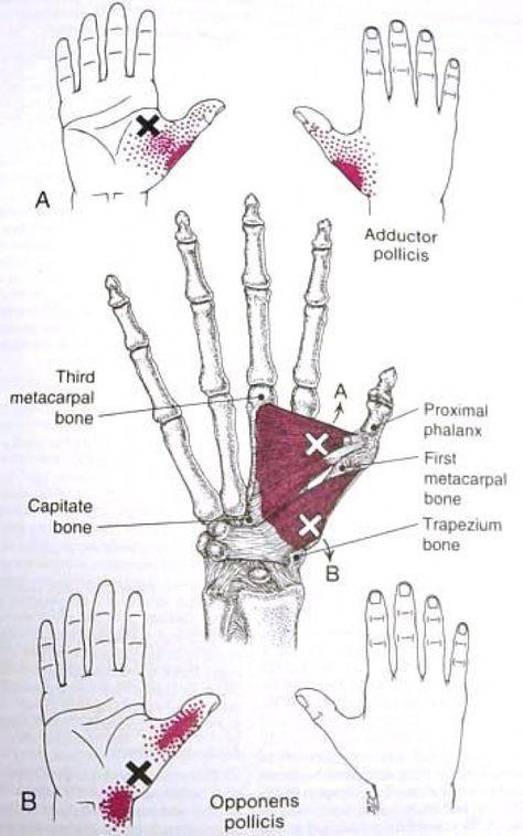 carpal ízületi fájdalom)