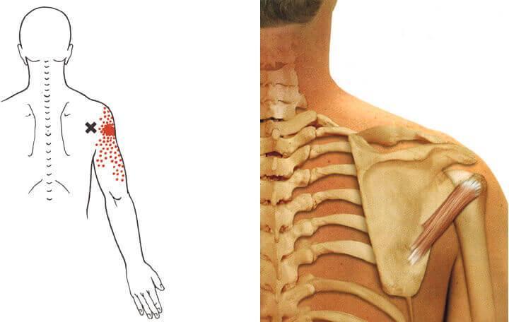 hogyan lehet enyhíteni a vállízület osteochondrozisának fájdalmait)
