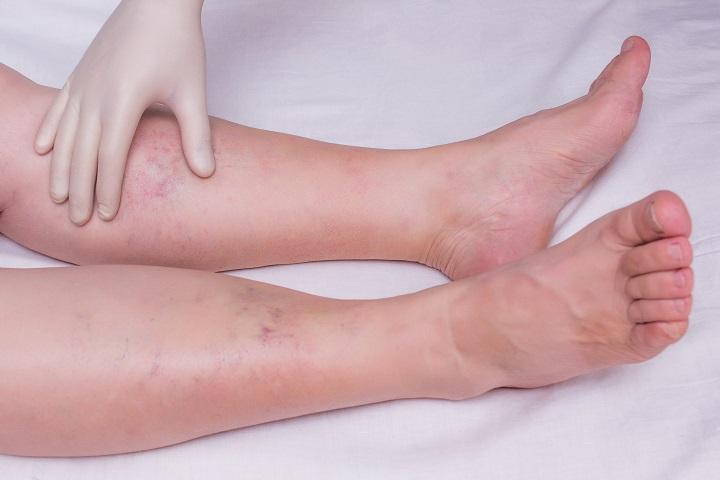 fájó térdízület és zsibbadt láb