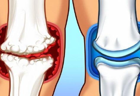 tapasztalatok az artrózis kezelésében ízületek fáj a kezelés, mint a kezelés