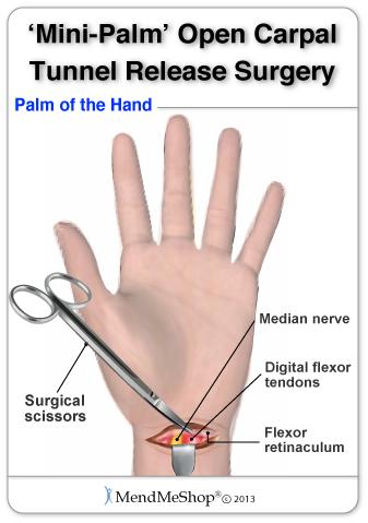 carpal carpal ízületi fájdalom hogyan lehet kezelni az ujjízületi gyulladást