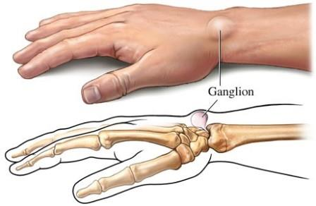 fáj a kéz ízületei